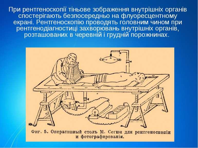При рентгеноскопії тіньове зображення внутрішніх органів спостерігають безпос...