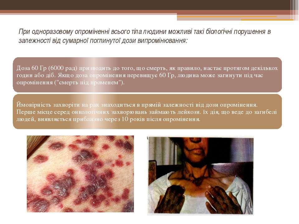 При одноразовому опроміненні всього тіла людини можливі такі біологічні поруш...