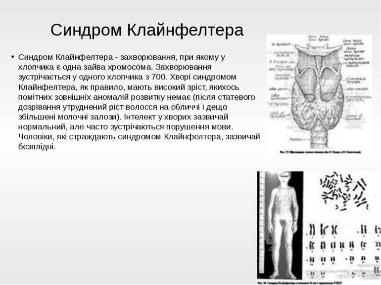 Синдром Клайнфелтера - захворювання, при якому у хлопчика є одна зайва хромос...