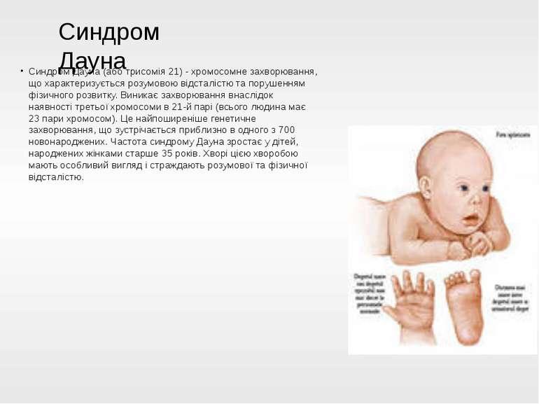 Синдром Дауна (або трисомія 21) - хромосомне захворювання, що характеризуєтьс...