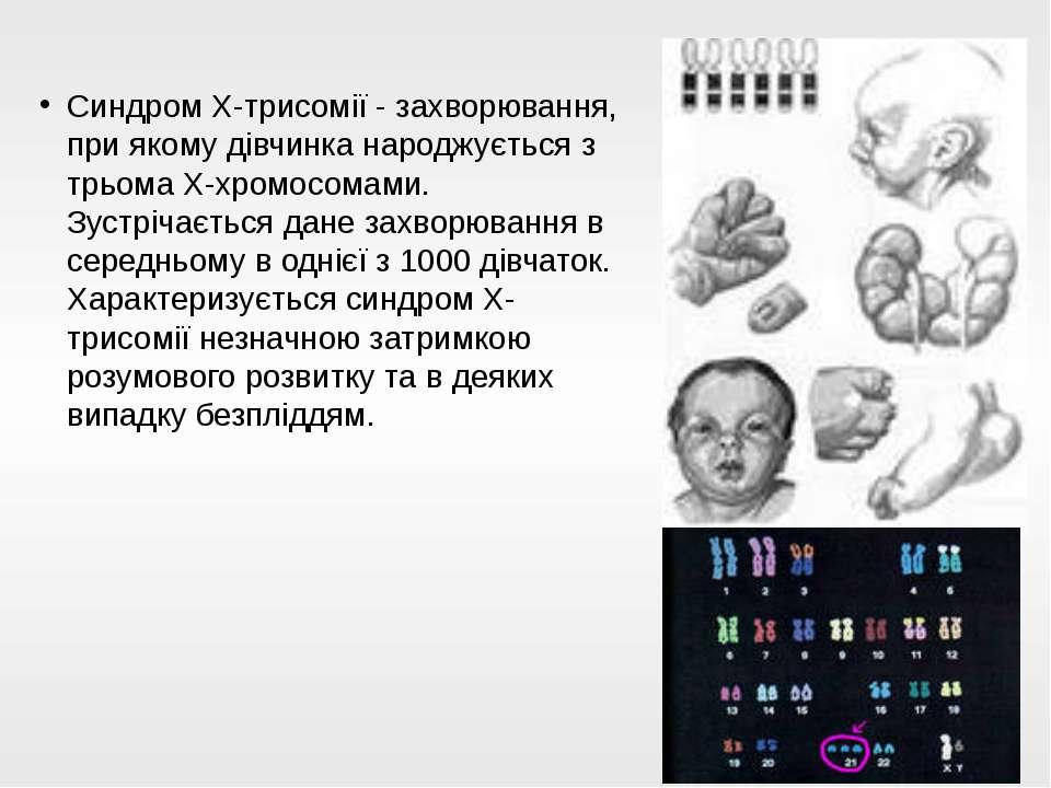 Синдром Х-трисомії - захворювання, при якому дівчинка народжується з трьома Х...