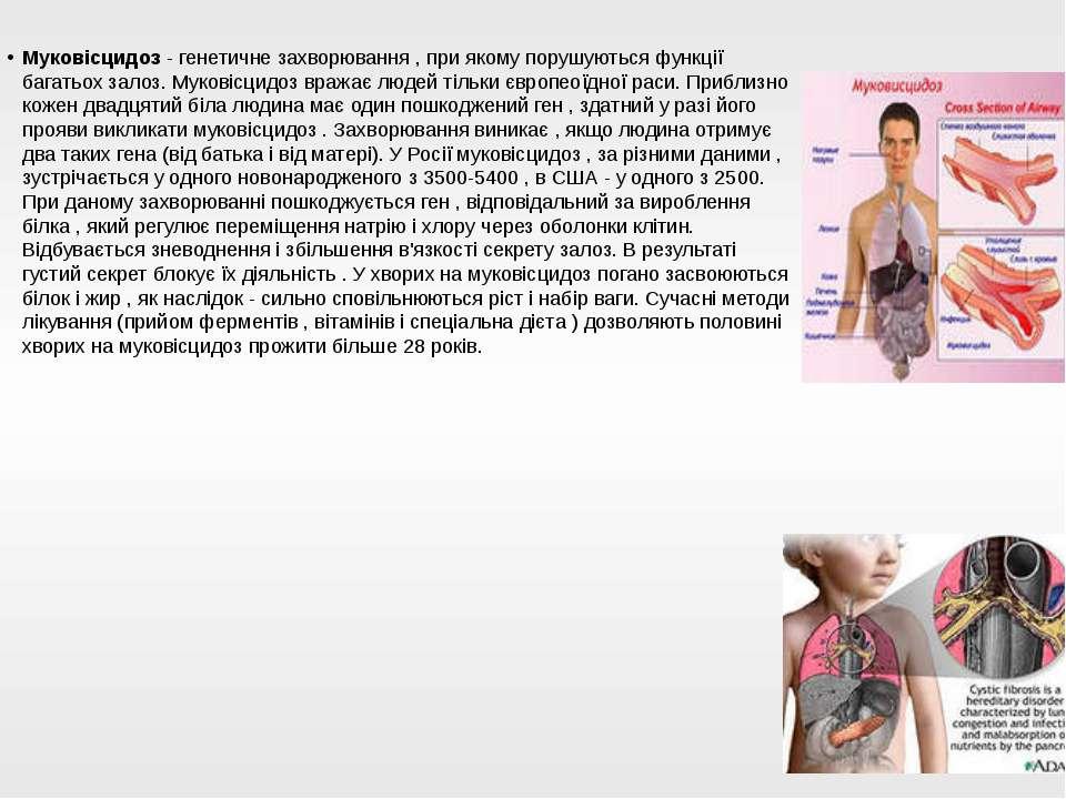 Муковісцидоз - генетичне захворювання , при якому порушуються функції багатьо...