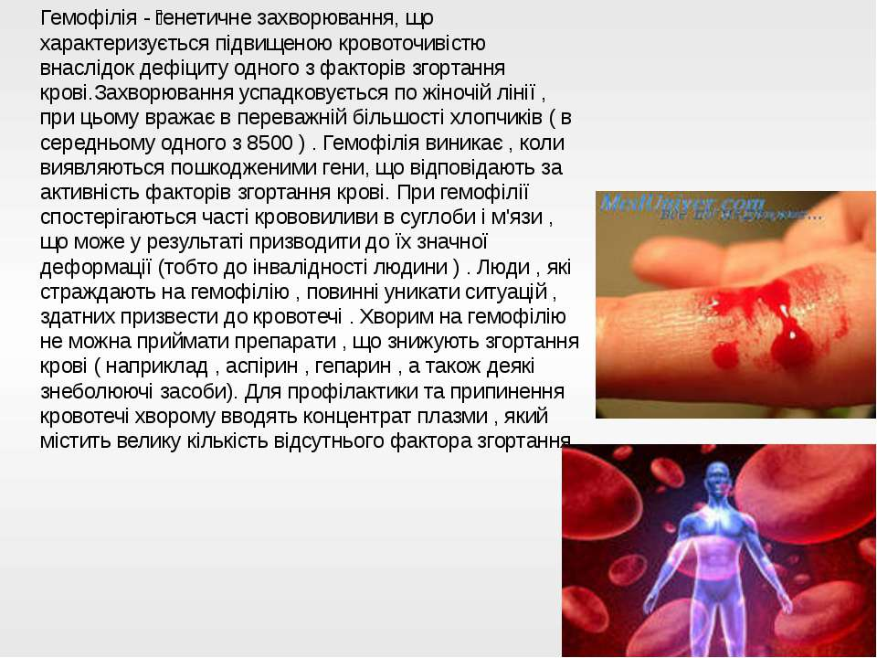 Гемофілія - генетичне захворювання, що характеризується підвищеною кровоточив...