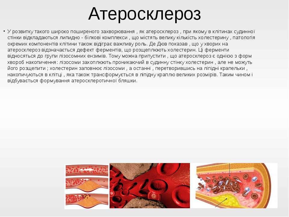 Атеросклероз У розвитку такого широко поширеного захворювання , як атеросклер...