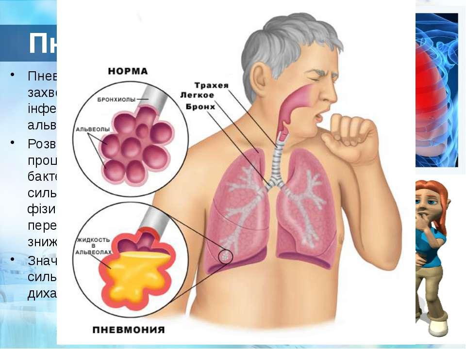 Пневмонія Пневмонія – це запальне захворювання легких, переважно інфекційної ...