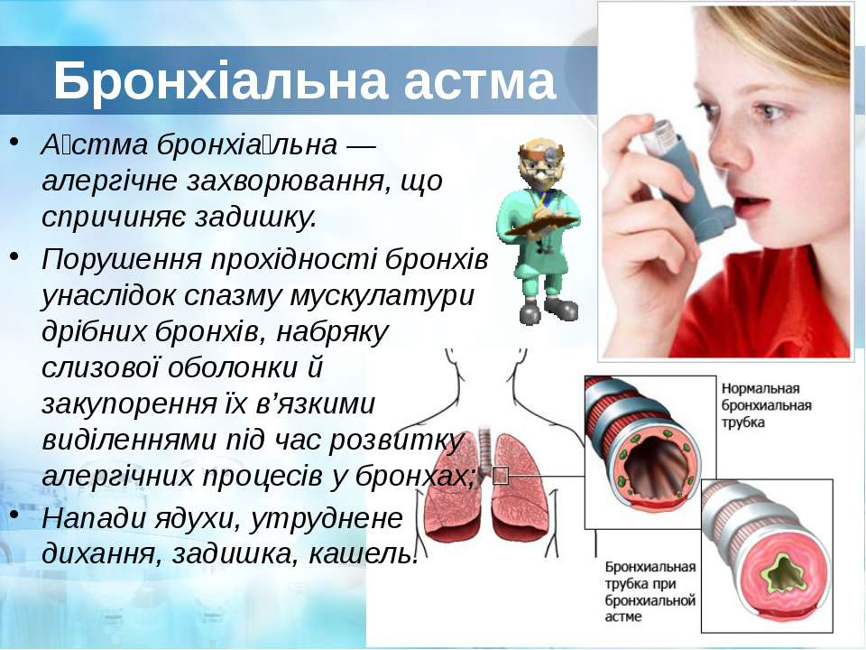 Бронхіальна астма А стма бронхіа льна — алергічне захворювання, що спричиняє ...