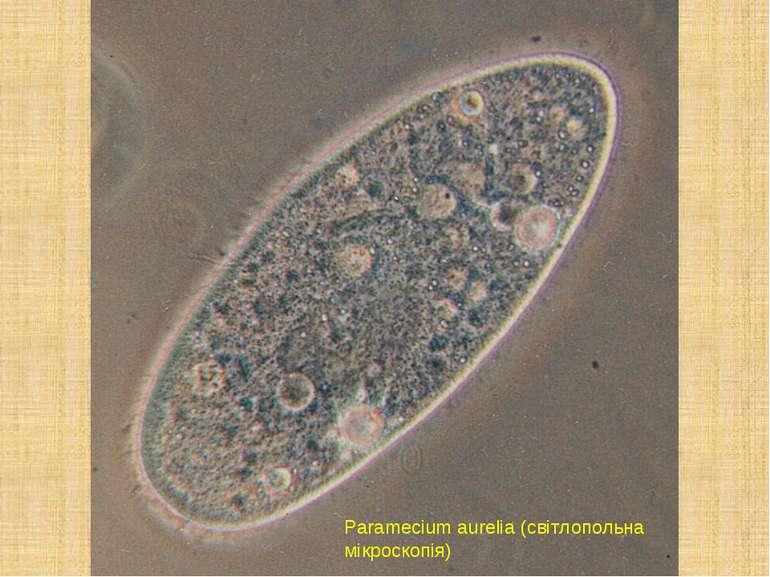 Paramecium aurelia (світлопольна мікроскопія)