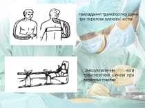 Накладання транспортної шини при переломі плечової кістки Знерухомлення ноги ...