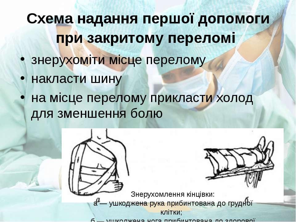 Схема надання першої допомоги при закритому переломі знерухоміти місце перело...
