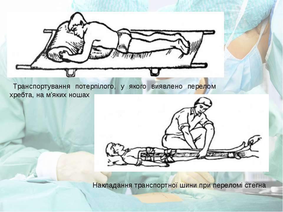 Транспортування потерпілого, у якого виявлено перелом хребта, на м'яких ношах...