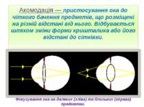 Акомодація — пристосування ока до чіткого бачення предметів, що розміщені на ...