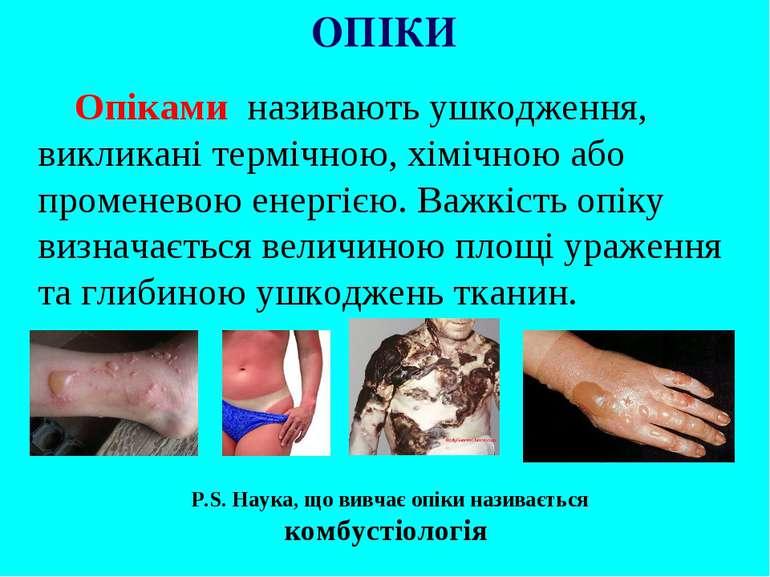 Опіками називають ушкодження, викликані термічною, хімічною або променевою ен...