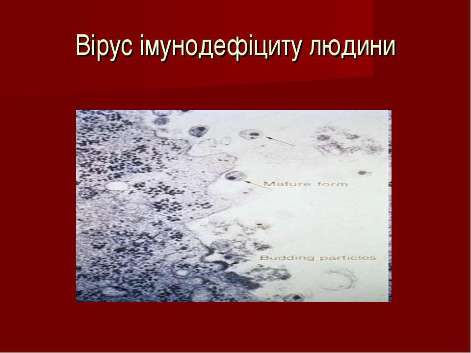 Вірус імунодефіциту людини
