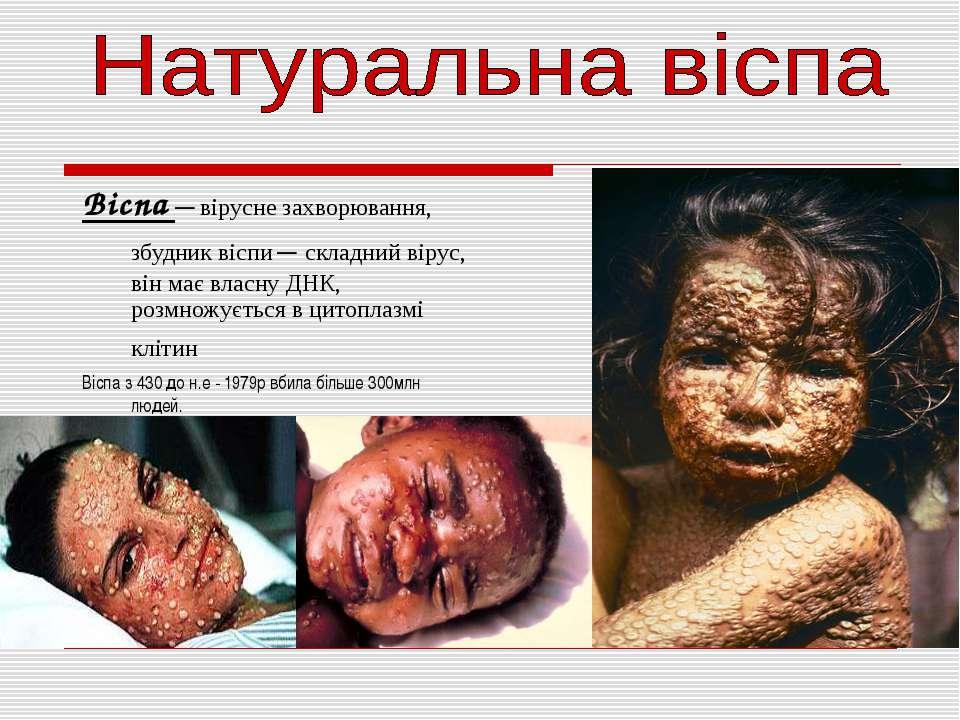 Віспа — вірусне захворювання, збудник віспи — складний вірус, він має власну ...