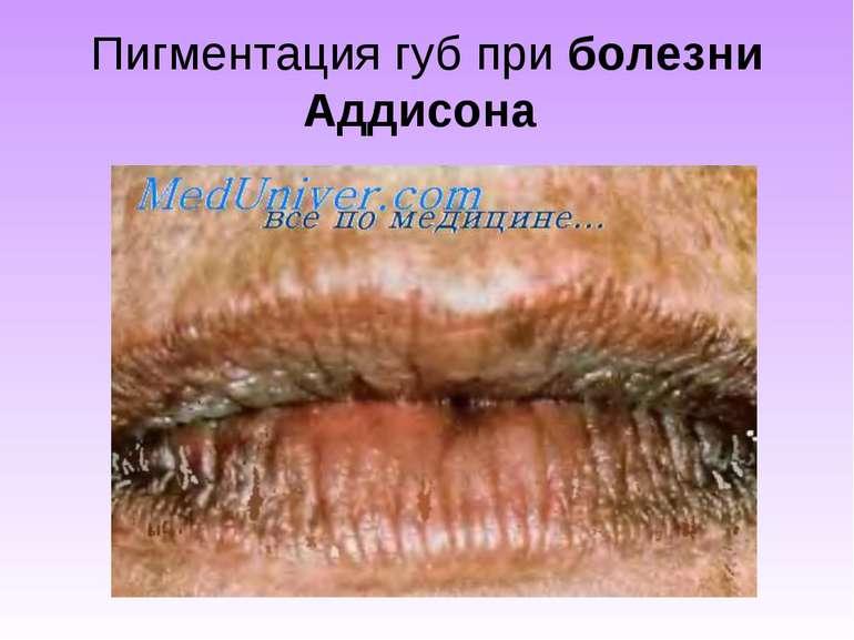 Пигментация губ приболезни Аддисона