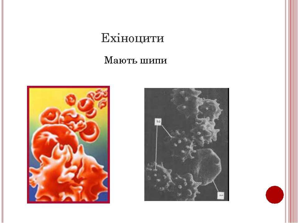 Ехіноцити Мають шипи