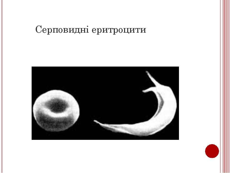 Серповидні еритроцити