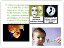 . Спостереження лікарів довели, що збільшена маса тіла мами не здатна захисти...
