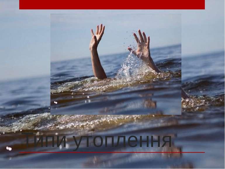Типи утоплення