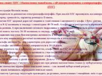 Для оцінки стану ЦНС і діагностики ушкоджень слід використовувати електроенце...