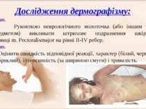 Дослідження дермографізму: 1етап. Рукояткою неврологічного молоточка (або ...
