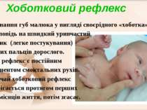 Випинання губ малюка у вигляді своєрідного «хоботка» у відповідь на швидкий у...