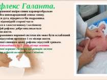 При подразненні шкіри спини паравертебрально вздовж хребта новонароджений зги...