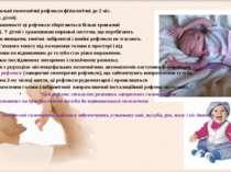 Міеленцефальні позотонічні рефлекси фізіологічні до 2 міс. (у доношених дітей...