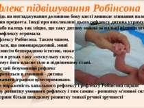 У відповідь на погладжування долонною боку кисті виникає згинання пальців і з...