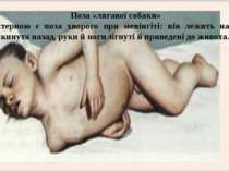 Поза «лягавої собаки» Характерною є поза хворого при менінгіті: він лежить на...