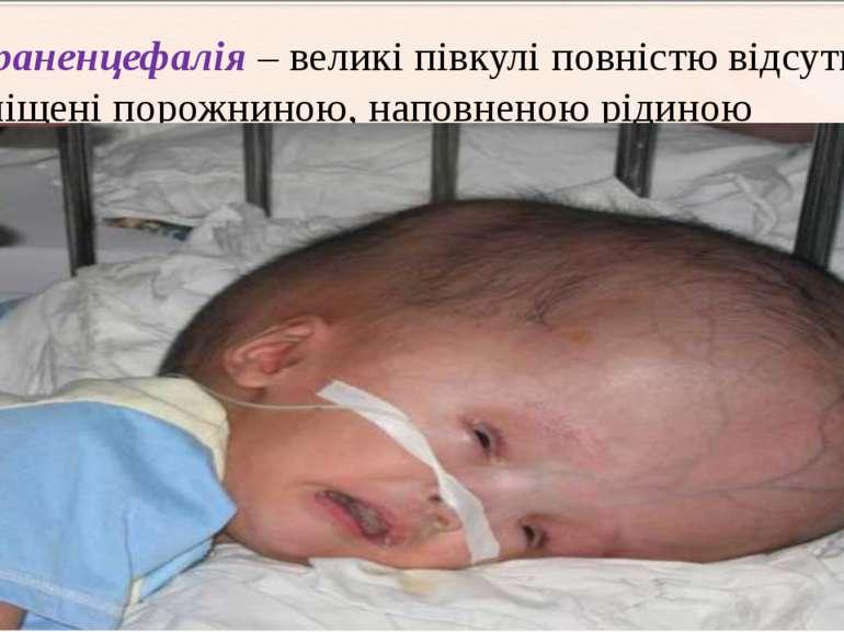 гідраненцефалія – великіпівкулі повністю відсутні і заміщені порожниною, нап...