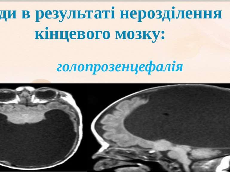 голопрозенцефалія – гемісфери не розділені напівкулі, мозкові шлуночк...