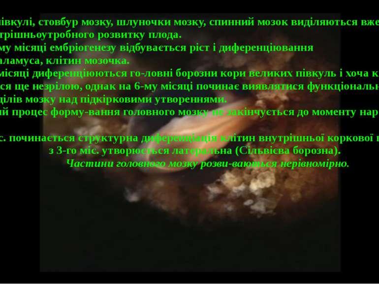 Великі півкулі, стовбур мозку, шлуночки мозку, спинний мозок виділяються вже ...