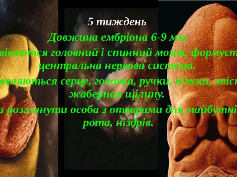 5 тиждень Довжина ембріона 6-9 мм. Развіваются головний і спинний мозок, форм...