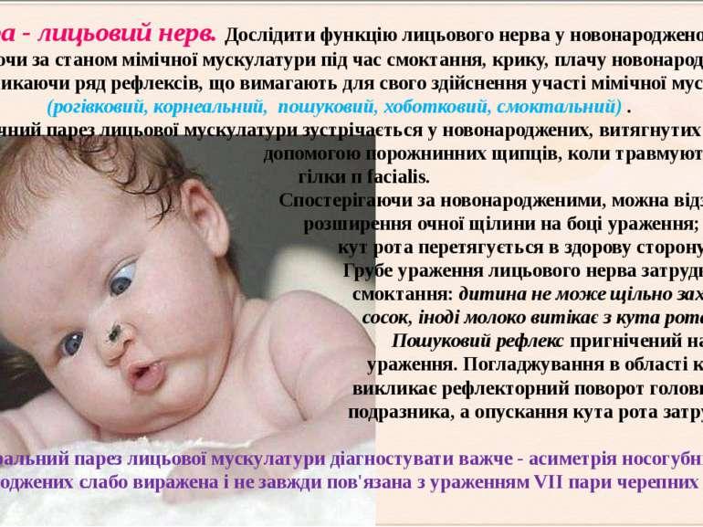 VІІпара - лицьовий нерв. Дослідити функцію лицьового нерва у новонародженого ...