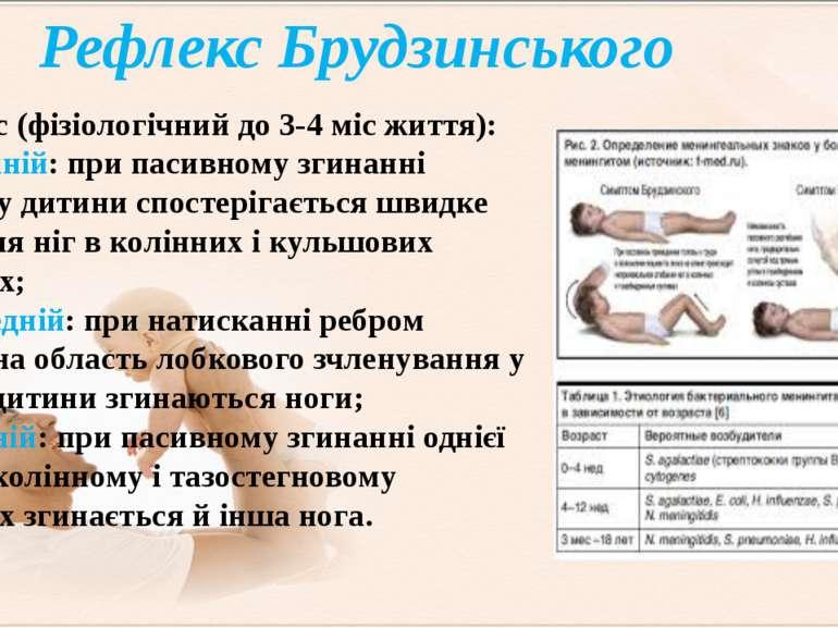 Рефлекс Брудзинського Рефлекс (фізіологічний до 3-4 міс життя): - Верхній: пр...