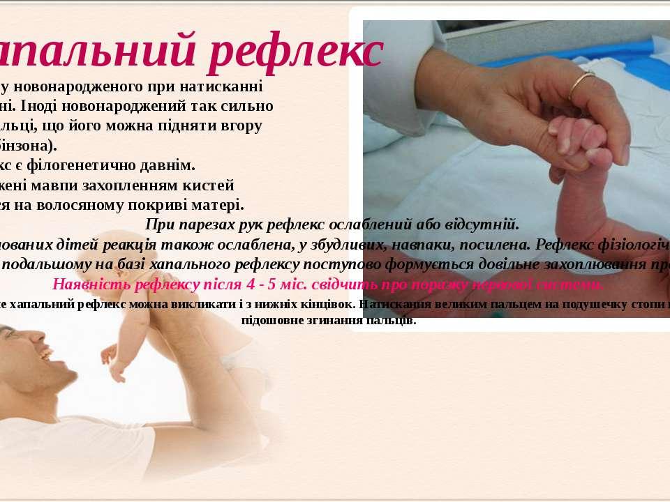 з'являється у новонародженого при натисканні на його долоні. Іноді новонародж...