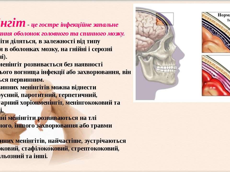 Менінгіт - це гостре інфекційне запальне захворювання оболонок головного та с...