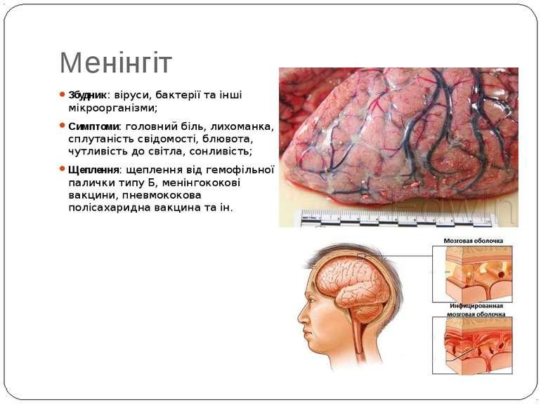 Менінгіт Збудник: віруси, бактерії та інші мікроорганізми; Симптоми: головний...