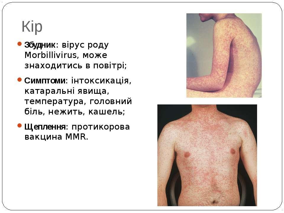 Кір Збудник: вірус роду Morbillivirus, може знаходитись в повітрі; Симптоми: ...