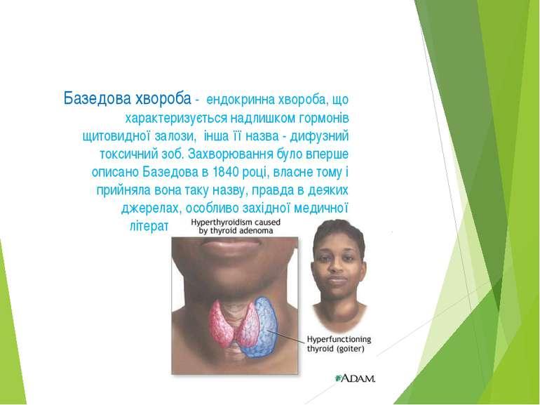Базедова хвороба - ендокринна хвороба, що характеризується надлишком гормонів...