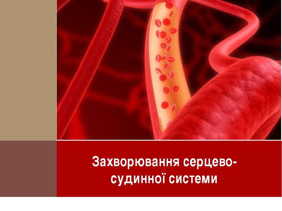 Захворювання серцево-судинної системи