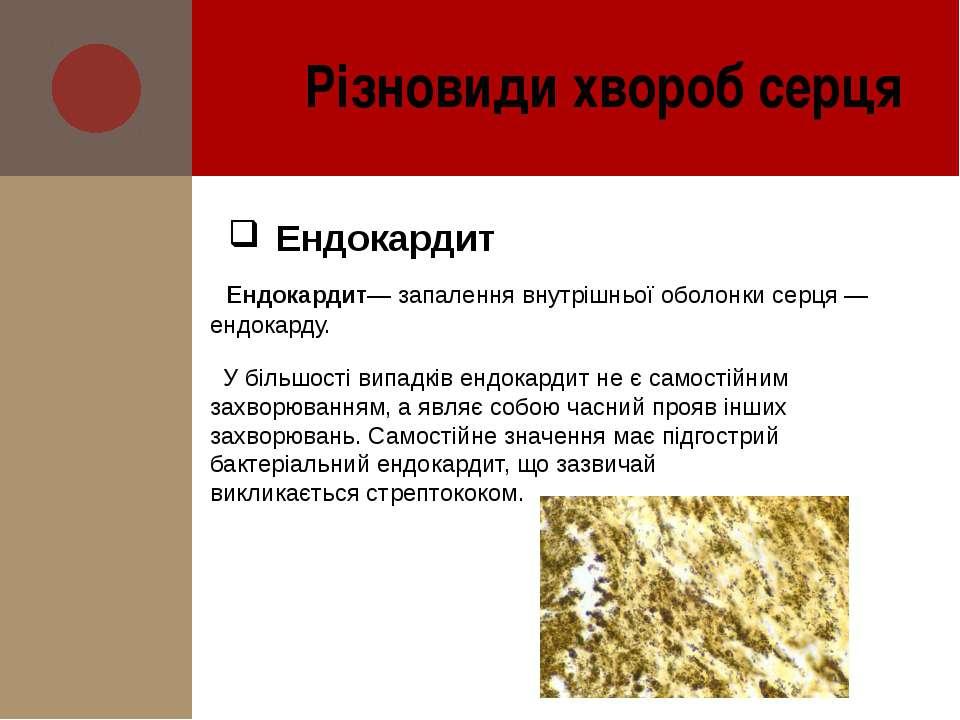 Ендокардит— запалення внутрішньої оболонкисерця— ендокарду. У більшості вип...