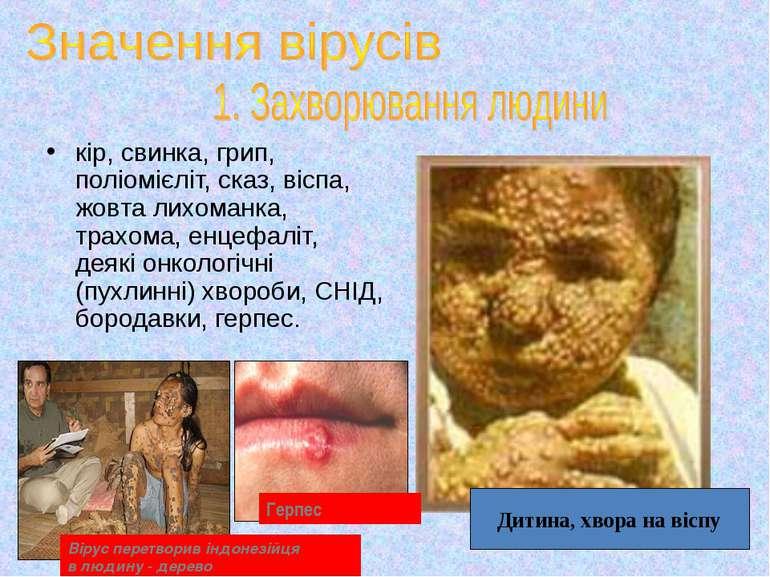 кір, свинка, грип, поліомієліт, сказ, віспа, жовта лихоманка, трахома, енцефа...