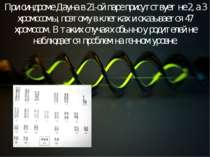 При синдроме Дауна в 21-ой паре присутствует не 2, а 3 хромосомы, поэтому в к...