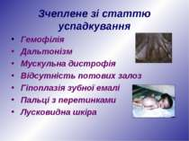 Зчеплене зі статтю успадкування Гемофілія Дальтонізм Мускульна дистрофія Відс...
