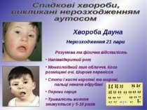 Хвороба Дауна Нерозходження 21 пари Розумова та фізична відсталість Напіввідк...
