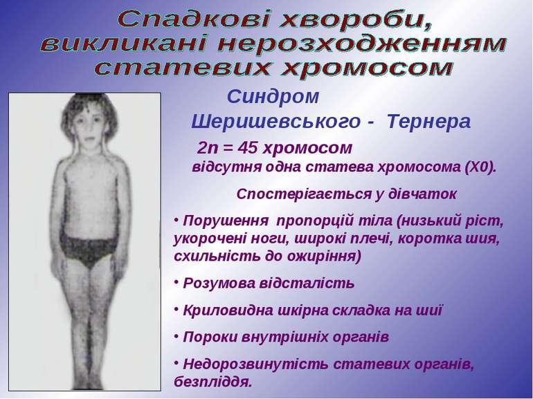 Синдром Шеришевського - Тернера 2n = 45 хромосом відсутня одна статева хромос...