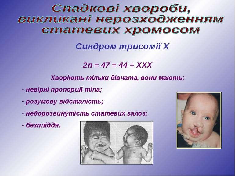 Синдром трисомії Х 2n = 47 = 44 + ХХХ Хворіють тільки дівчата, вони мають: не...