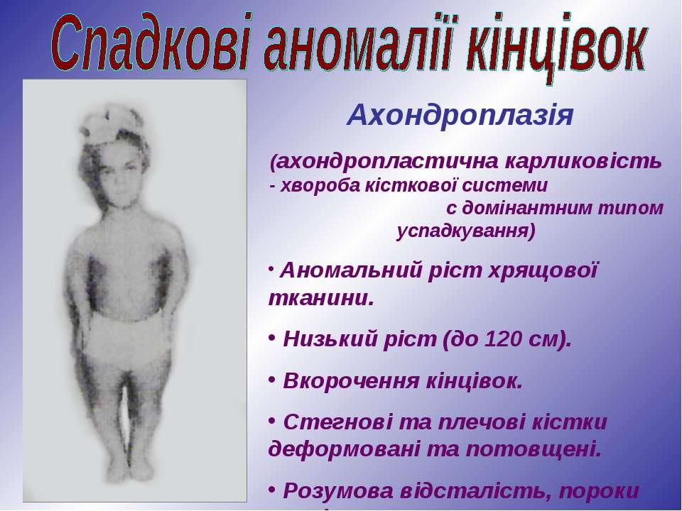 Ахондроплазія (ахондропластична карликовість - хвороба кісткової системи с до...